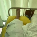 目が覚めると。体が動かない。手術した左ひざには、冷やす板が置かれた。