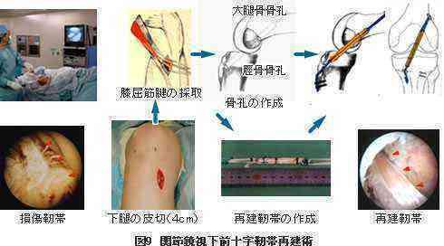 関節鏡視下手術の図解